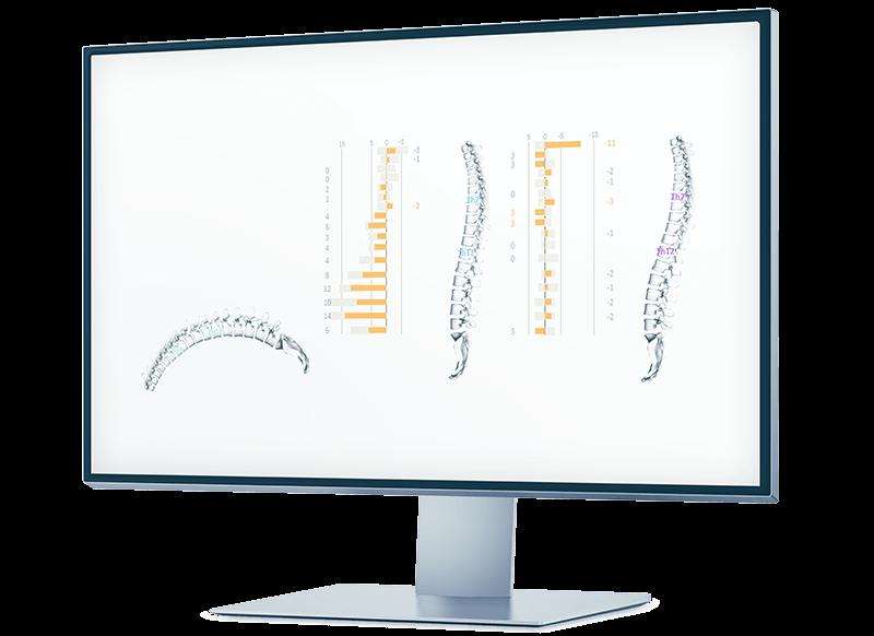 IDIAG-M360-Spinalmouse - Wervelkolom analyse